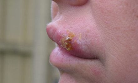 How to get rid of a cold sore?