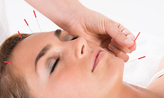 Acupuncture as natural face lift and facial botox