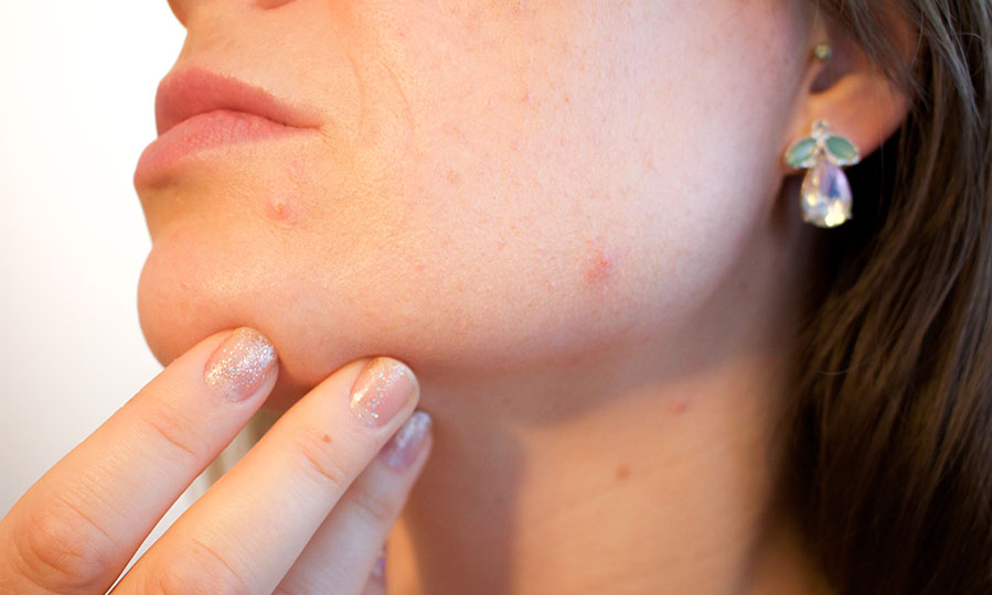 Why people with oily skin have acne and how to treat it