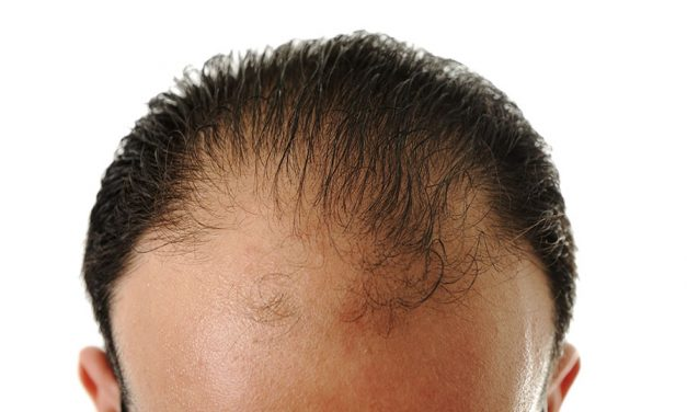 Do's and Don'ts after a hair restoration procedure
