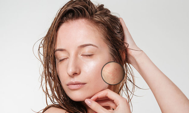 How to remove blemishes on face?