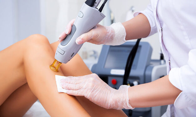 Benefits of getting laser hair removal over waxing