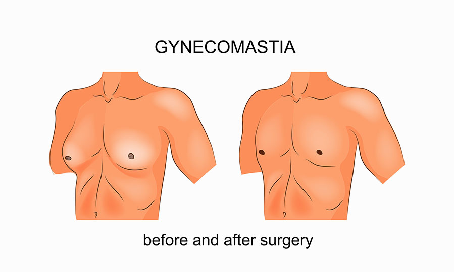 Take A Load Off Your Chest With Male Breast Reduction Surgery