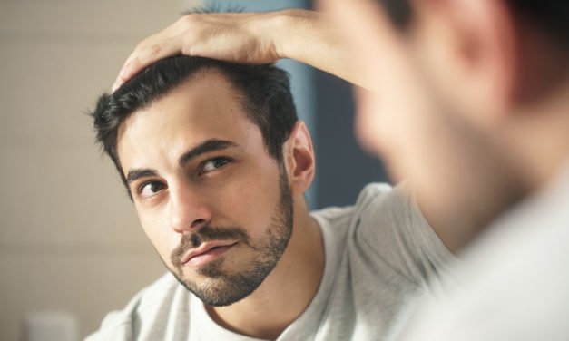 The real truth about why your hairline is receding