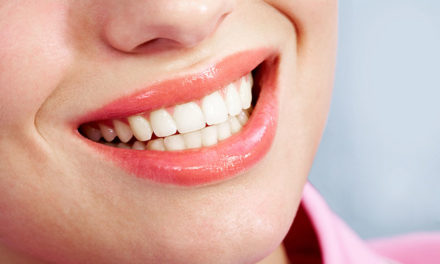 Does teeth whitening work and is it bad for your teeth?